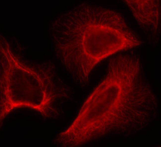 Phospho-p70 S6 Kinase (Ser424) Antibody (PA5-37732) in Immunofluorescence