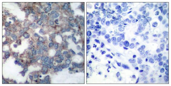 Phospho-p70 S6 Kinase (Ser424) Antibody (PA5-37732) in Immunohistochemistry (Paraffin)