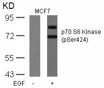 Phospho-p70 S6 Kinase (Ser424) Antibody (PA5-37732) in Western Blot