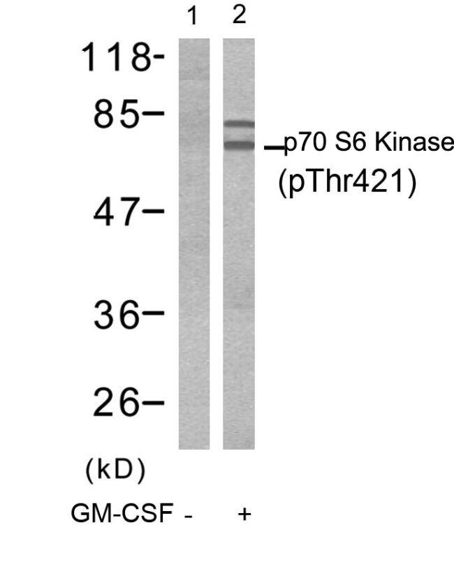Phospho-p70 S6 Kinase (Thr421) Antibody (PA5-37733) in Western Blot