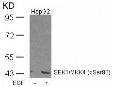 Phospho-SEK1 (Ser80) Antibody (PA5-37735) in Western Blot