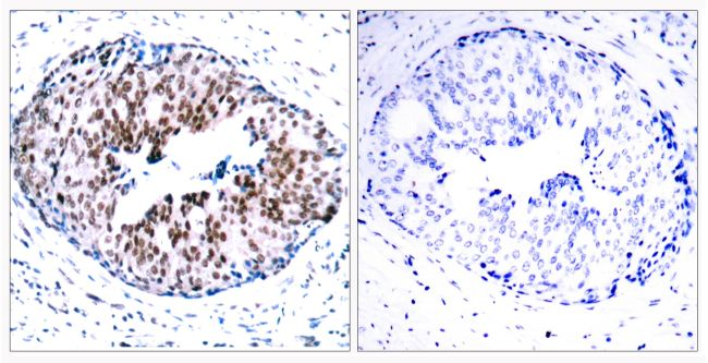 Phospho-STAT5 alpha (Ser780) Antibody (PA5-37744)