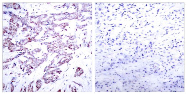 Phospho-STAT6 (Thr645) Antibody (PA5-37745) in Immunohistochemistry (Paraffin)