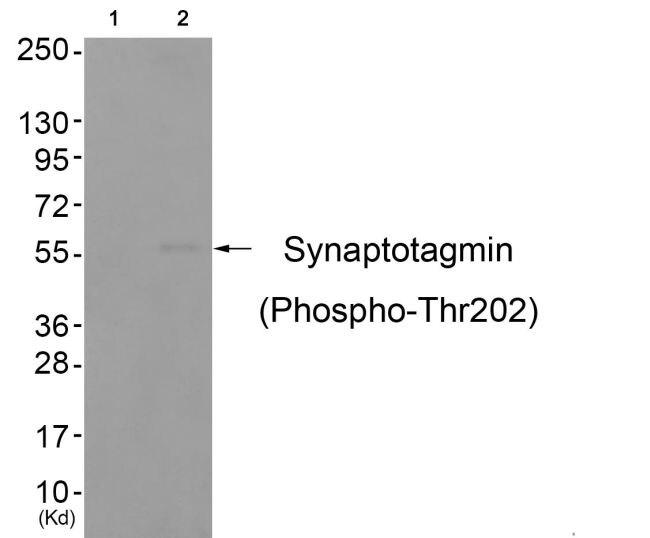 Phospho-Synaptotagmin 1 (Thr202) Antibody (PA5-37751) in Western Blot