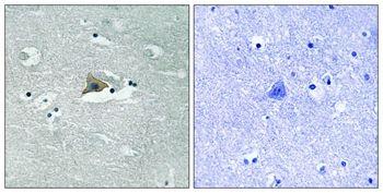 Phospho-Claudin 5 (Tyr217) Antibody (PA5-37756) in Immunohistochemistry (Paraffin)