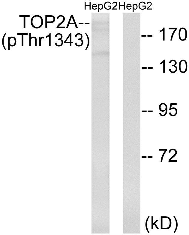 Phospho-TOP2A (Thr1343) Antibody (PA5-37757)