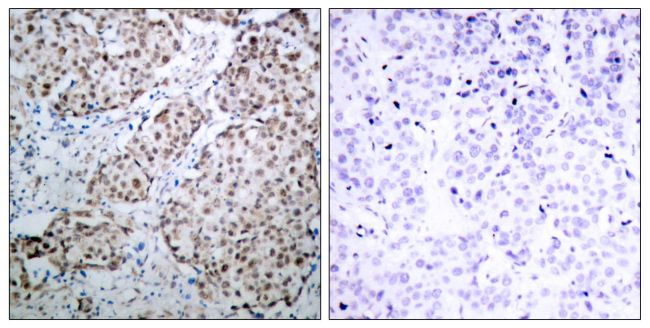Phospho-p53 (Ser315) Antibody (PA5-37758) in Immunohistochemistry (Paraffin)