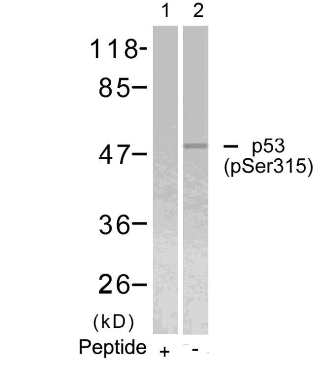 Phospho-p53 (Ser315) Antibody (PA5-37758) in Western Blot
