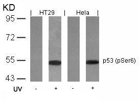 Phospho-p53 (Ser6) Antibody (PA5-37760) in Western Blot