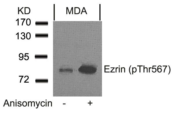 Phospho-Ezrin (Thr567) Antibody (PA5-37763) in Western Blot