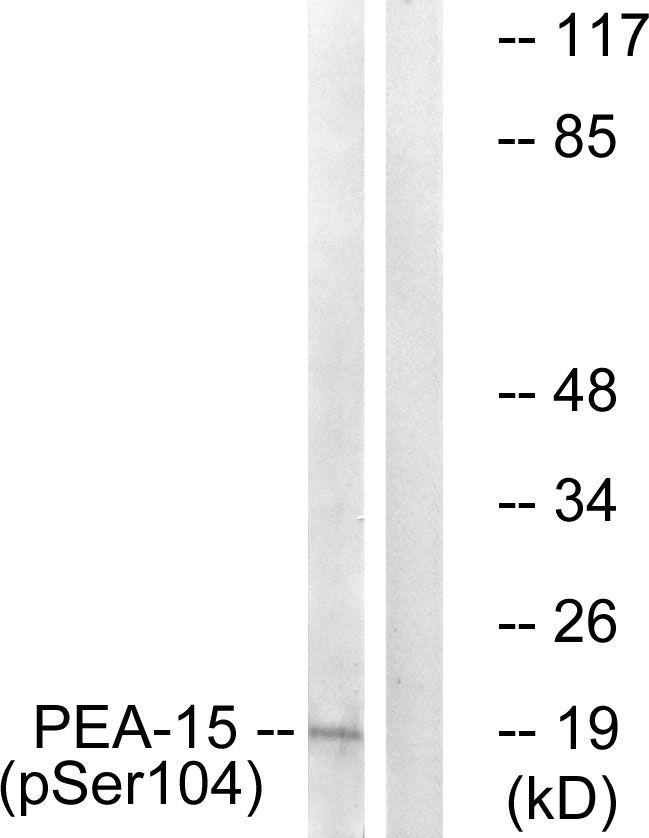 Phospho-PEA15 (Ser104) Antibody (PA5-37767) in Western Blot