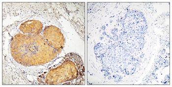 Phospho-FADD (Ser191) Antibody (PA5-37768) in Immunohistochemistry (Paraffin)