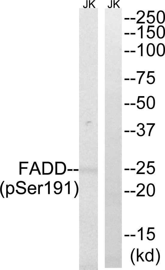 Phospho-FADD (Ser191) Antibody (PA5-37768) in Western Blot