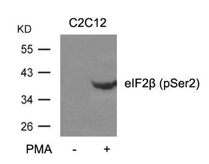 Phospho-eIF2 beta (Ser2) Antibody (PA5-37769)