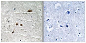 Phospho-MDC1 (Ser513) Antibody (PA5-37776)