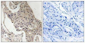 Phospho-GAB2 (Ser623) Antibody (PA5-37777) in Immunohistochemistry (Paraffin)