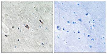 Phospho-GAB2 (Tyr643) Antibody (PA5-37778) in Immunohistochemistry (Paraffin)