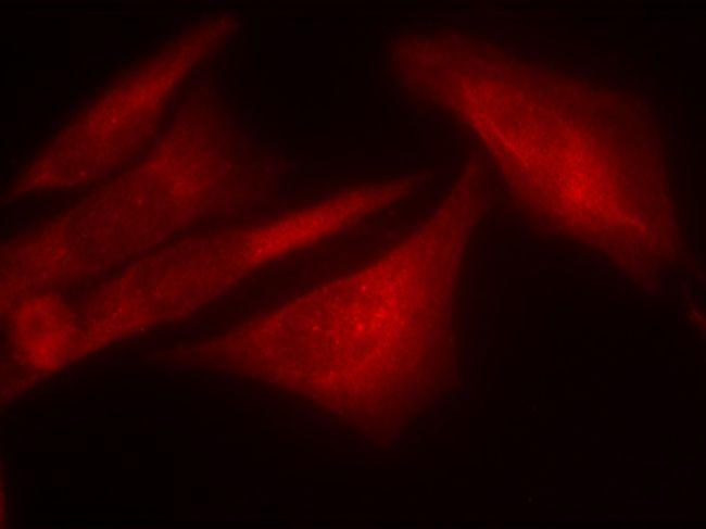 Phospho-G3BP1 (Ser232) Antibody (PA5-37781) in Immunofluorescence