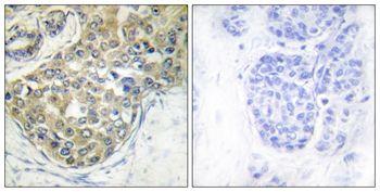 Phospho-ACK1 (Tyr284) Antibody (PA5-37782) in Immunohistochemistry (Paraffin)