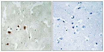 Phospho-TIP60 (Ser90) Antibody (PA5-37784)