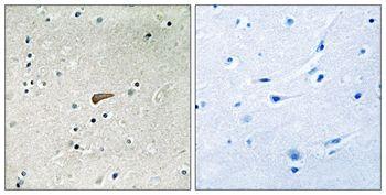 Phospho-FRS2 (Tyr436) Antibody (PA5-37785)