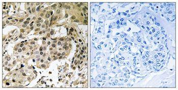 Phospho-HP1 alpha (Ser92) Antibody (PA5-37791)