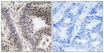 Phospho-WWOX (Tyr33) Antibody (PA5-37795) in Immunohistochemistry (Paraffin)