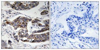 Phospho-Girdin (Ser1417) Antibody (PA5-37796) in Immunohistochemistry (Paraffin)