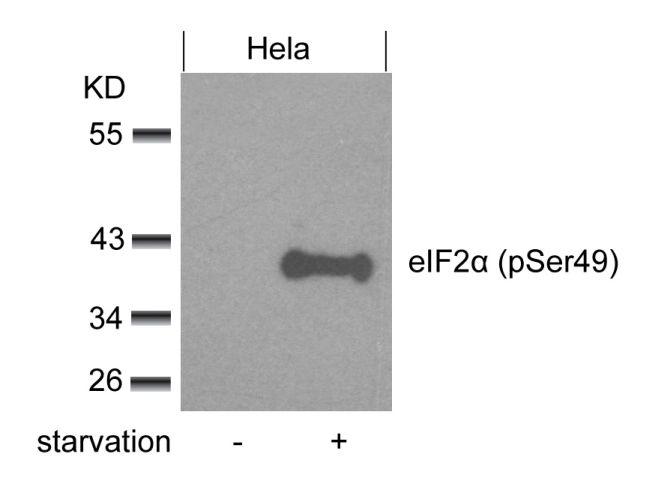Phospho-eIF2a (Ser49) Antibody (PA5-37799) in Western Blot
