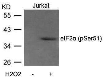 Phospho-eIF2a (Ser51) Antibody (PA5-37800) in Western Blot