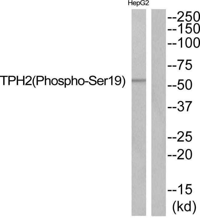 Phospho-TPH2 (Ser19) Antibody (PA5-37803)