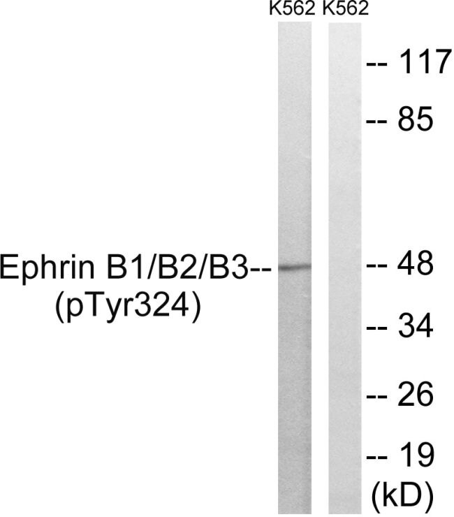 Phospho-Ephrin B1/B2/B3 (Tyr324) Antibody (PA5-37810) in Western Blot
