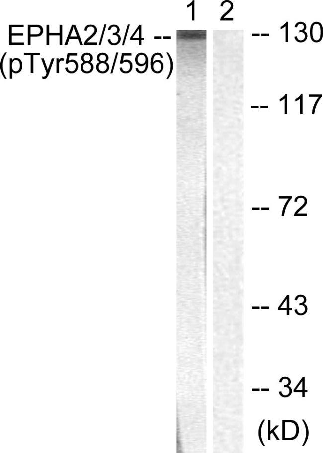Phospho-EphA2/EphA3/EphA4 (Tyr588, Tyr596) Antibody (PA5-37811) in Western Blot
