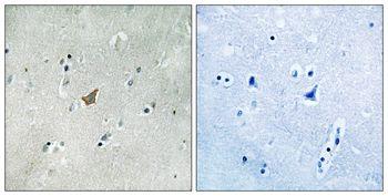Phospho-EphA3/EphA4/EphA5 (Tyr779, Tyr833) Antibody (PA5-37813) in Immunohistochemistry (Paraffin)