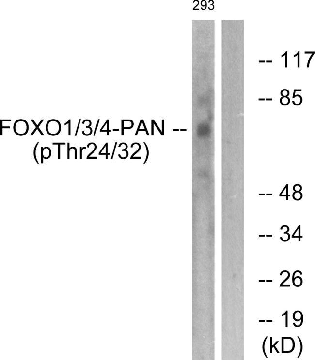 Phospho-FOXO1/FOXO3/FOXO4 (Thr24, Thr32) Antibody (PA5-37817) in Western Blot