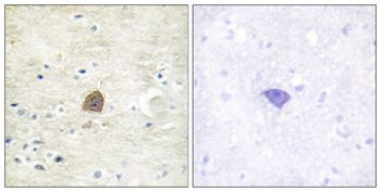 Phospho-CaMKII alpha/beta/delta (Thr305) Antibody (PA5-37832)