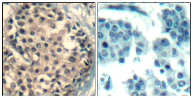Phospho-HDAC4/HDAC5/HDAC9 (Ser246, Ser259, Ser220) Antibody (PA5-37835)