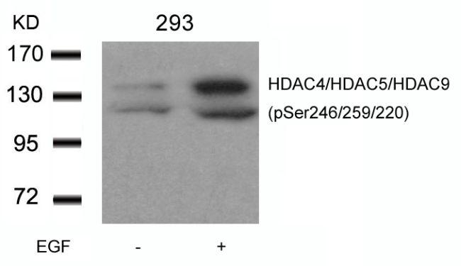 Phospho-HDAC4/HDAC5/HDAC9 (Ser246, Ser259, Ser220) Antibody (PA5-37835) in Western Blot
