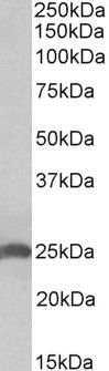 Apolipoprotein D Antibody (PA5-37837) in Western Blot