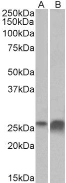 Apolipoprotein D Antibody (PA5-37838) in Western Blot