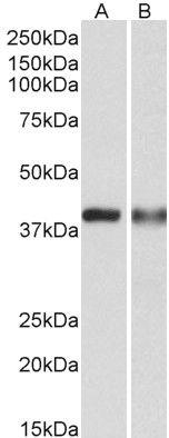 CAPG Antibody (PA5-37847) in Western Blot