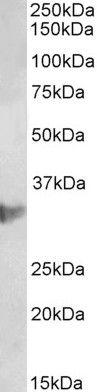 CLIC1 Antibody (PA5-37851)