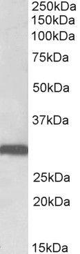 Stomatin Antibody (PA5-37857) in Western Blot