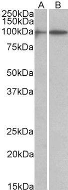HIC1 Antibody (PA5-37864)