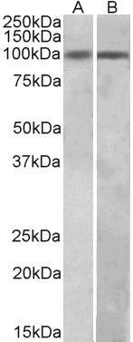 HIC1 Antibody (PA5-37865) in Western Blot