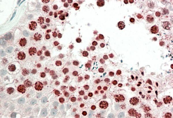 HOXA10 Antibody (PA5-37866) in Immunohistochemistry (Paraffin)