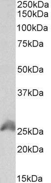 HOXB6 Antibody (PA5-37867) in Western Blot