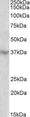 HOXD12 Antibody (PA5-37868) in Western Blot