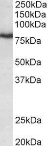 KCNC3 Antibody (PA5-37871) in Western Blot