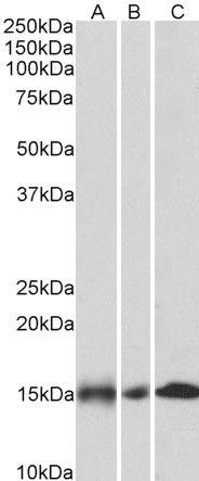 NDUFA7 Antibody (PA5-37875) in Western Blot